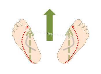 足底をハの字にして歩いてオーバープロネーションの足の動きを再現した状態