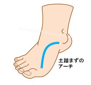 足底のアーチ