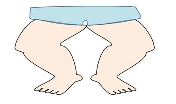 体重が増えて足の裏のアーチが潰れて扁平足になった足