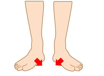 足の内側に体重がかかる扁平足の足