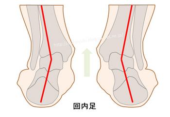 回内足の人の足首付近の骨格