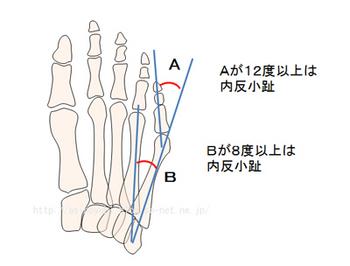 内反小趾の人の骨の状態