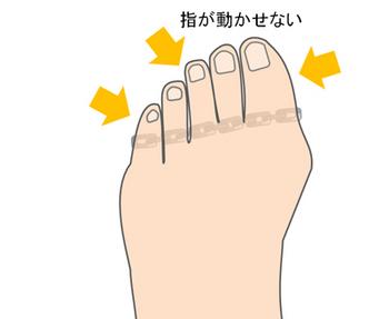 指を動かせないように制約を受ける人の足の指
