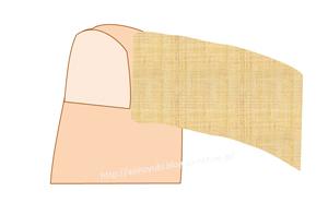 テーピングで陥入爪を治す方法