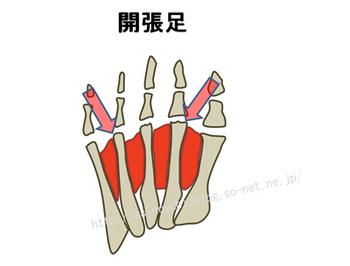 内反小趾の人の足の構造