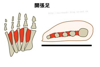 開張足の人の足の構造