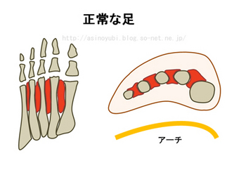 正常な人の足の構造