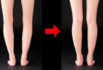 O脚が笠原式バランスサポーター足裏天国で改善されたところ