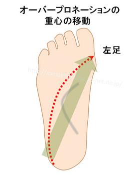 オーバープロネーションの人が走った時の足底の重心の移動