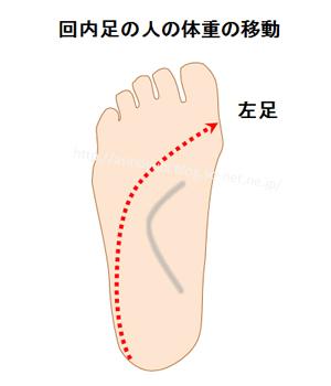 回内足の人の足の裏の体重の移動