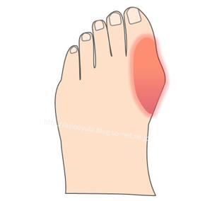 痛風で腫れ上がった親指の付け根