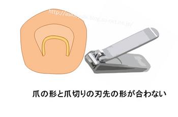 巻き爪を普通の爪切り出来る場合