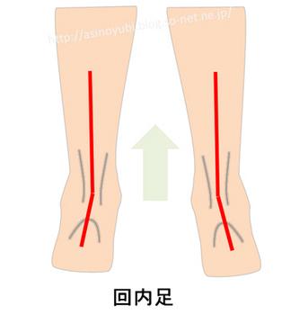 回内足の人の足