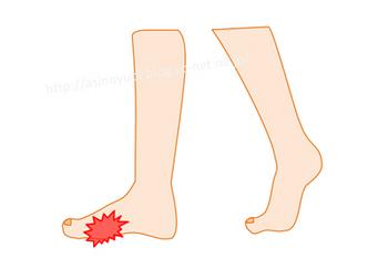 種子骨炎で痛む足の位置