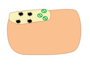 爪に侵入した白癬菌を駆逐する薬