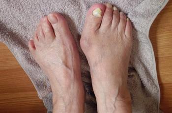 外反母趾の人が床に置いたタオルを足の指でたぐっているところ