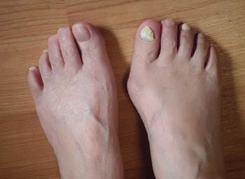 右足だけ外反母趾になっている人の足