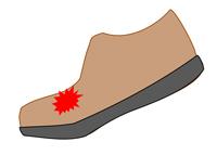 足指が上に曲がって痛い靴