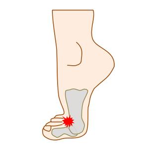 強剛母趾で足が痛む状態