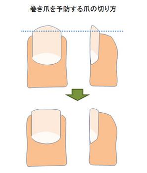 巻き爪にならないための正しい爪の切り方