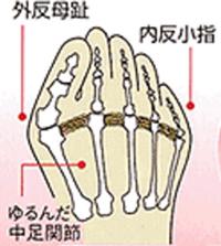 外反母趾・内反小趾になっている足の仕組み