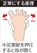 ソルボ外反母趾サポーターの原理